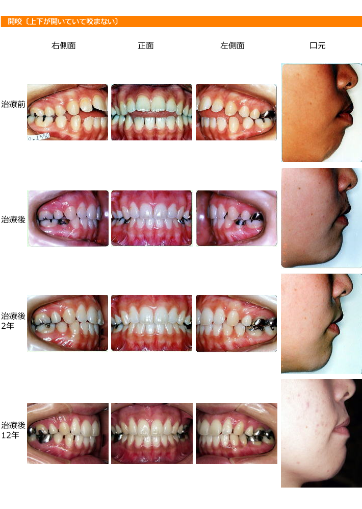 img_orthodontic_dentistry12